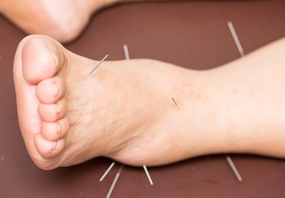 akupunktura noga cena