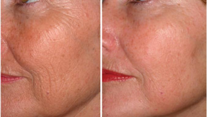 vidni-rezultati-pomaljevanja-obraza